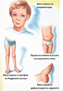 парализи при полиомиелит